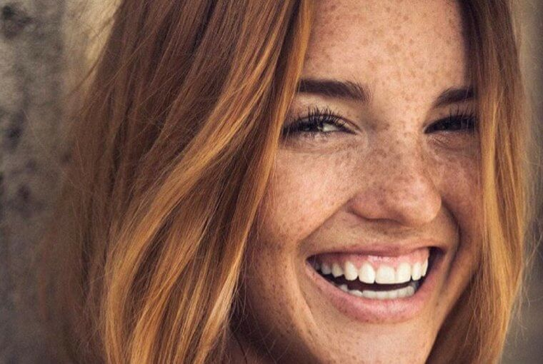 There are few natural ways to treat the freckles created by the sun. Read more how to do it without medical treatments.